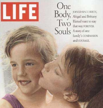 30 Interesting Things About Famous Conjoined Twins Abby And Brittany Hensel