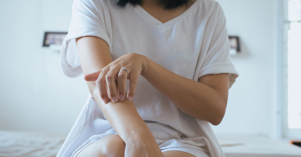 Here Are Four Easy Ways To Manage A Psoriasis Flare Up